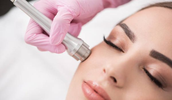 Microdermabrasion Treatments in Plymouth